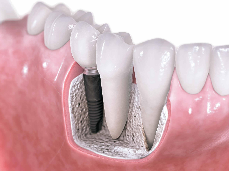 Implantes dentales Adín fiabilidad