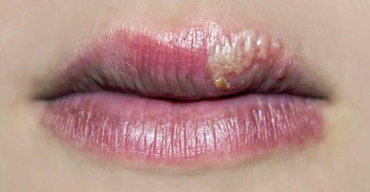 Morderse las uñas infecciones orales