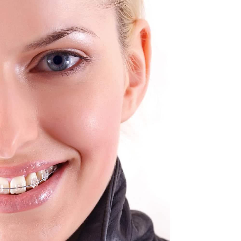 Salud dental en Navidad ortodoncia