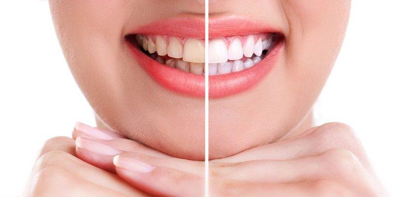 Resultado de imagen de Kit de Blanqueamiento Dental GIF