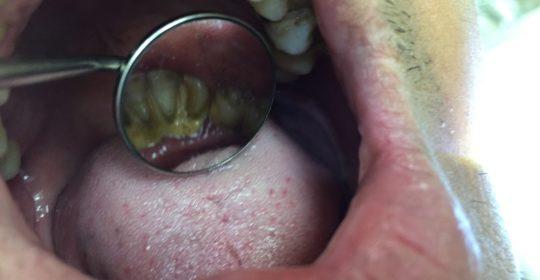 halitosis enfermedad oral