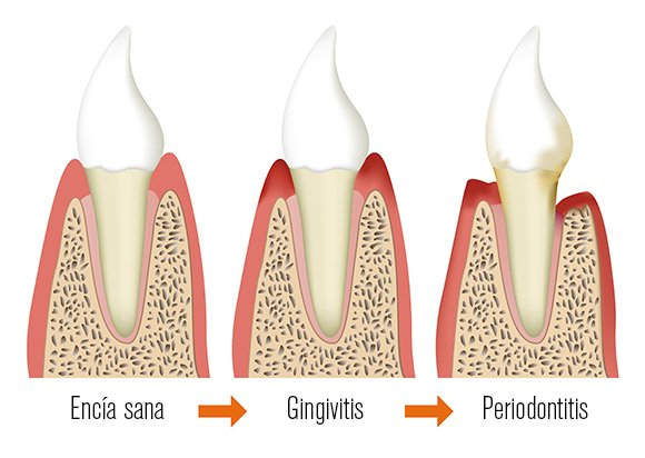periodotitis vs Gingivitis amora dental Periodoncia