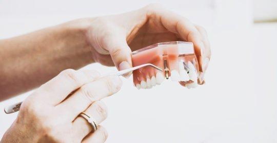 salud periodontal en verano periodontitis